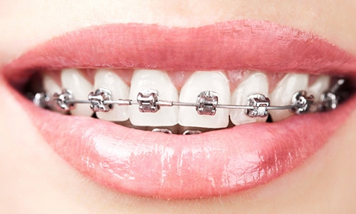 brackets-autoligado-damon-1